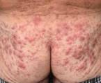 Histiocytóza zindeterminovaných buněk – vymizení kožní infiltrace po ozáření elektronovým svazkem aaplikace 2-chlorodeoxyadenozinu: kazuistika