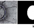 Optical nerve segmentation using The Active shape method