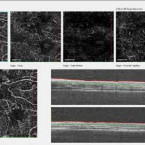 Angio OCT – a new non-invasive imaging examination method of diagnosing and monitoring of diabetic retinopathy