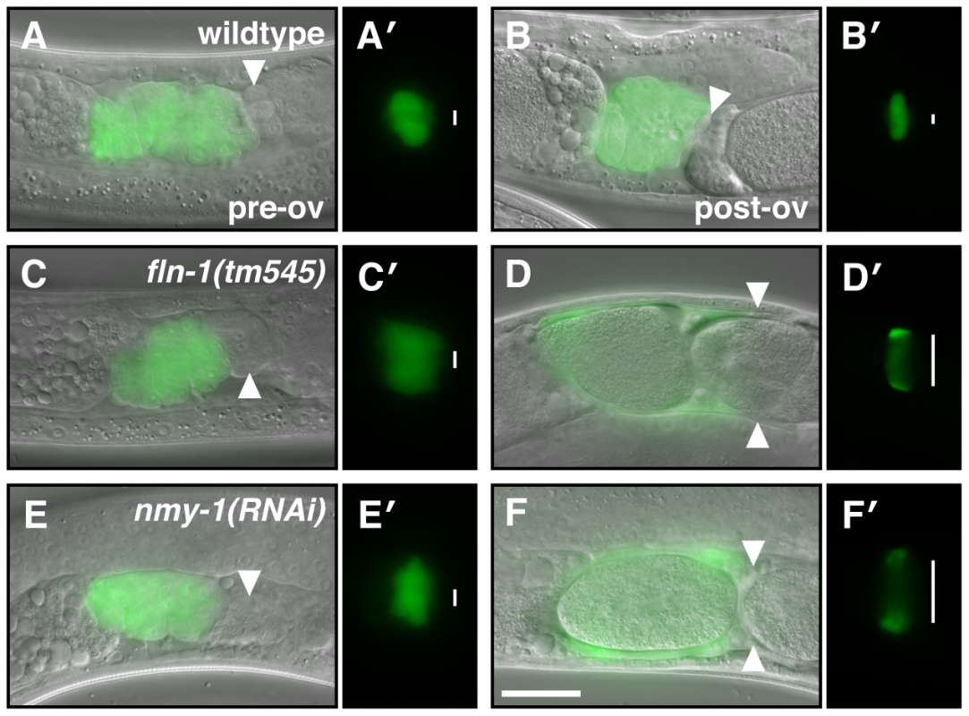NMY-1 is required for spermathecal contractility.