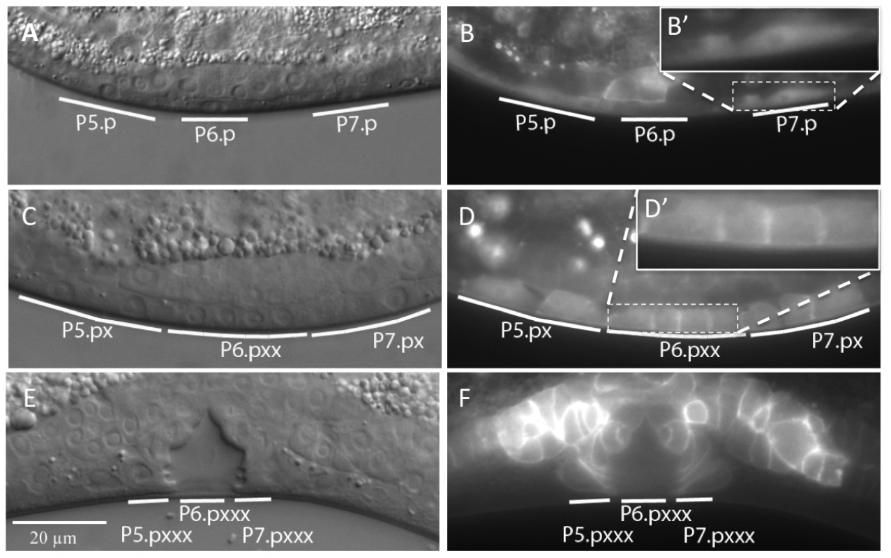 Expression pattern and sub-cellular localization of DAF-18::GFP.