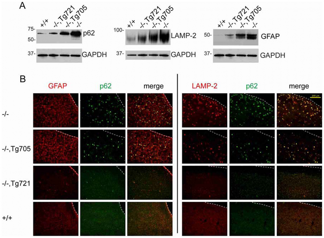 Dose-dependent rescue of the autophagy defect in brain of transgenic mice.