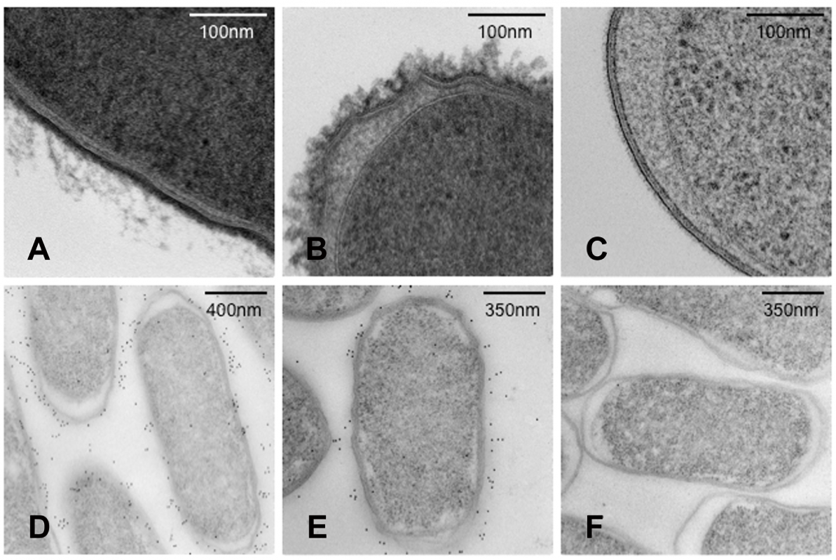 Transmission electron microscopy (TEM) images of <i>S.</i> Typhi and <i>S.</i> Typhimurium showing expression of Vi polysaccharide.