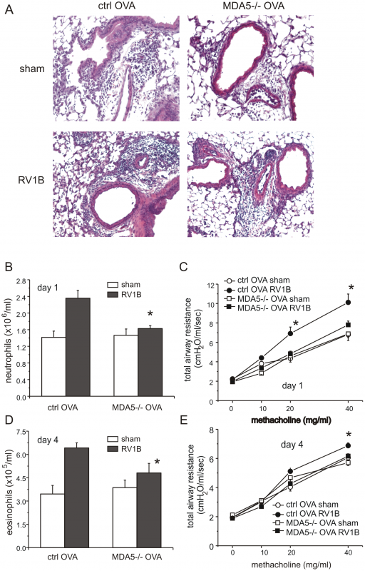 Lung inflammation in OVA-treated RV1B-infected MDA5−/− mice: histology and airways responsiveness.
