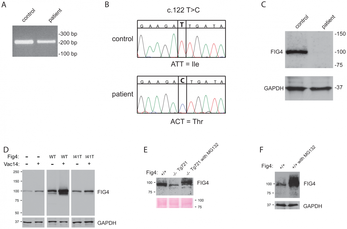 <i>FIG4</i> transcript and protein in CMT4J patient fibroblasts.