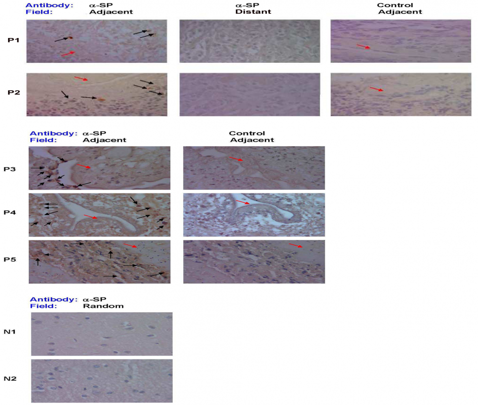 SP immunostaining of brain tissue samples from NCC-infected and uninfected patients.