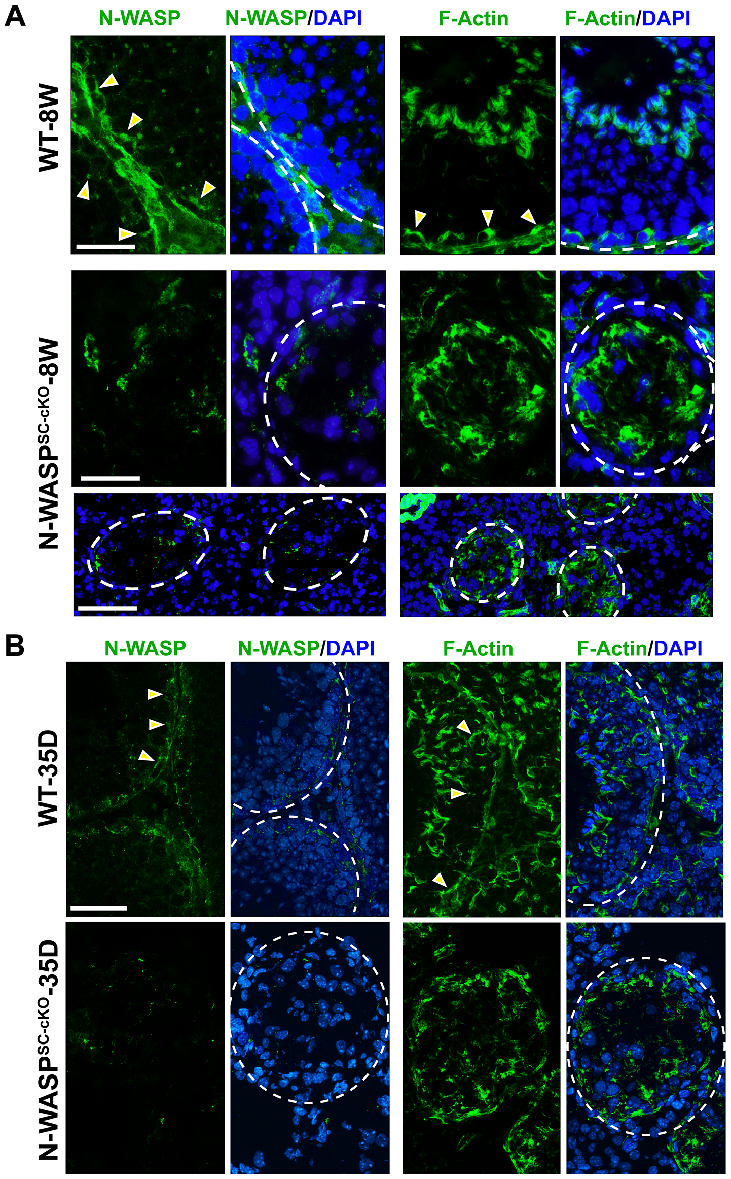 Sertoli cell-specific knockout of N-WASP leads to disorganization of F-actin in the seminiferous epithelium.
