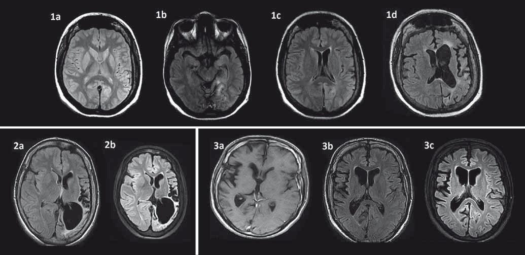 Časový vývoj MR zmien u troch pacientov s Rasmussenovou encefalitídou. 1a: T2W MR mozgu vo veku 24 rokov v čase prvého status epilepticus bez jasných atrofických zmien u pacientky s parciálnymi záchvatmi od 16 rokov; 1b: FLAIR MR s hyperintenzívnym signálom temporookcipitálne vľavo vo veku 29 rokov u tej istej pacientky; 1c: FLAIR MR incipientná atrofia v oblasti caput nuclei caudati vľavo vo veku 29 rokov u tej istej pacientky; 1d: FLAIR MR vo veku 34 rokov výrazná progresia atrofie ľavej mozgovej hemisféry s klinickou progresiou do reziduálneho štádia s ťažkou pravostrannou spastickou hemiparézou a afáziou, prevažne expresívnou, vyhasínanie epileptických záchvatov; 2a: FLAIR MR u 25-ročnej pacientky s dominujúcou atrofiou posteriórne vľavo s anamnézou parciálnych záchvatov od 6 rokov, prekonaným prvým status epilepticus vo veku 20 rokov s aktívnou epilepsiou a minimálnym neurologickým deficitom; 2b: FLAIR MR vo veku 28 rokov výrazná progresia atrofie v oblasti ľavej hemisféry dominujúca parietookcipitálne, minimálny neurologický deficit; 3a: FLAIR MR u 19-ročného pacienta s ľahkou atrofiou predominantne centrálne v oblasti pravej hemisféry (prvé parciálne záchvaty vo veku 17 rokov a prvý status epilepticus vo veku 18 rokov); 3b: FLAIR MR – 31-ročný – malá progresia atrofie centrálne vpravo (pre ťažkú farmakorezistetntnú epilepsiu s minimálnym neurologickým deficitom po zlyhaní predošlej imunoterapie indikovaný na biologickú liečbu rituximabom); 3c: FLAIR MRI – 34-ročný – v MR bez výraznejšej progresie atrofie pravej hemisféry, tri roky stabilizovaný na liečbe rituximabom (sporadické parciálne záchvaty, bez progresie neurologického deficitu). Pozn.: Prezentované so súhlasom Rádiologickej kliniky LF UK, SZU a UN Bratislava, Nemocnica ak. L. Dérera. Fig. 1. Time evolution of MRI changes in three patients with Rasmussen's encephalitis. 1a: T2W MRI of a 24-year-old female patient following the first status epilepticus, no brain atrophy (first partial seizures occurred 