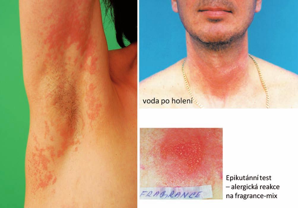 Eczema contactum – fragrance-mix