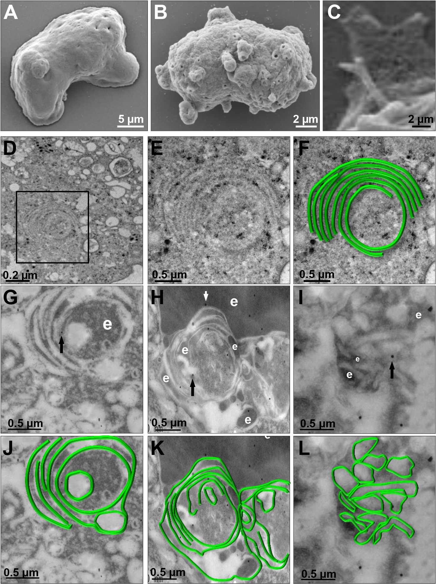 SEM and TEM of membranous helicoidally structures in <i>pNeoEhvps32-HA</i> transfected trophozoites.