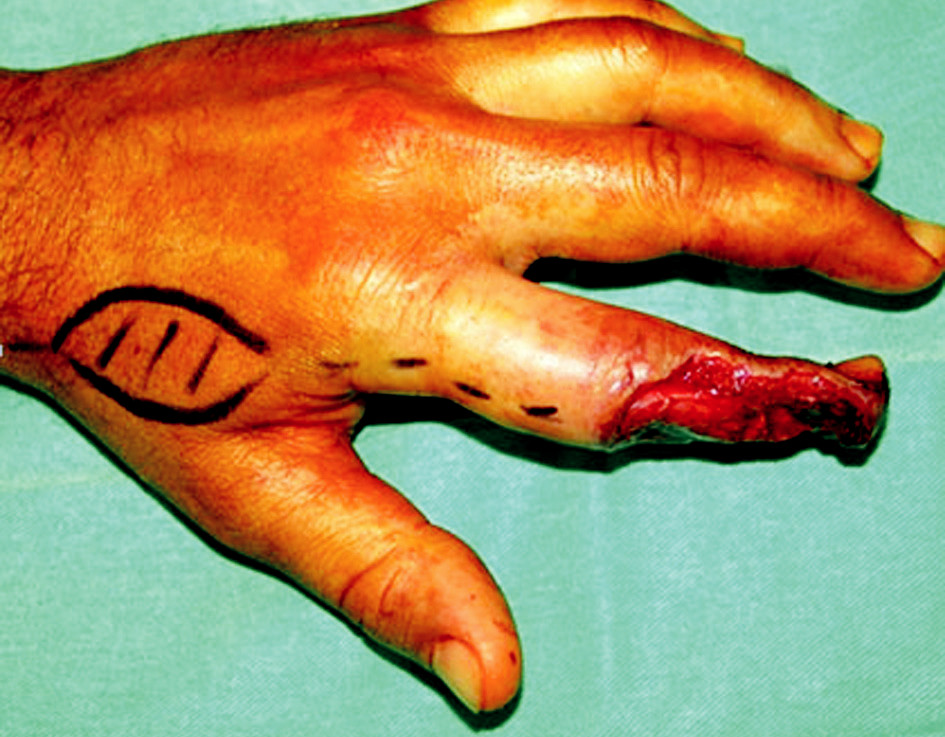 Fig. 3. Soft tissue defect of the hand