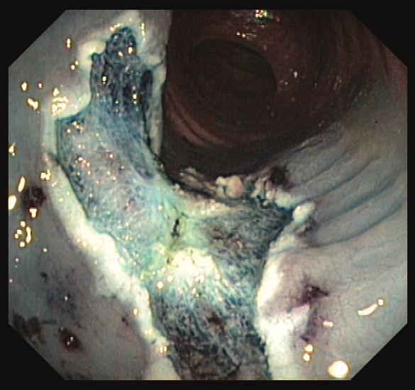 Spodina po endoskopické mukozální resekci přisedlého polypu