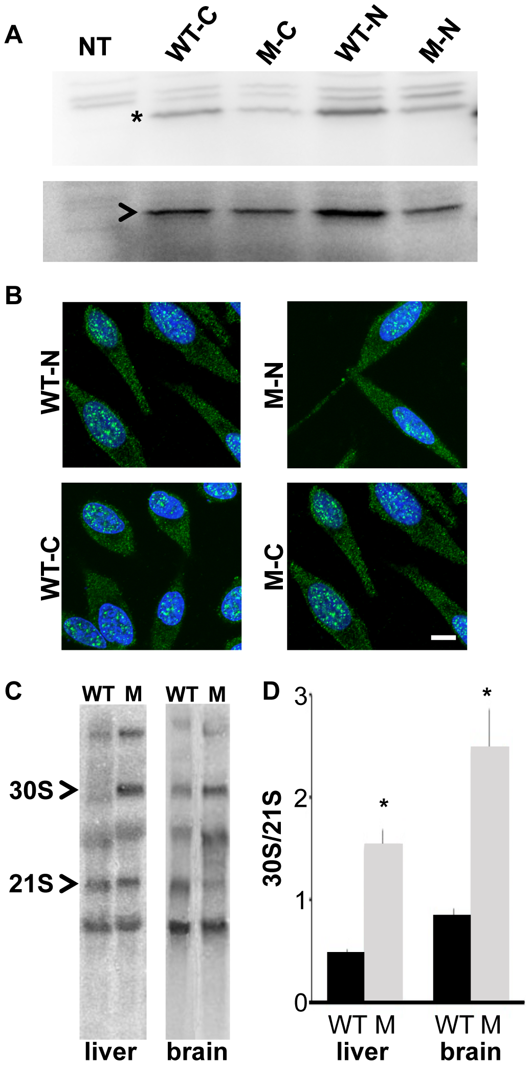 <i>Rps7<sup>Mtu</sup></i> shows reduced function in ribosomal precursor processing.