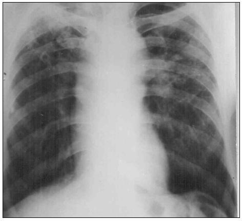 Obr. 8. Obojstranne lokalizované silikotické zatienenia v možnej kombinácii s TBC
