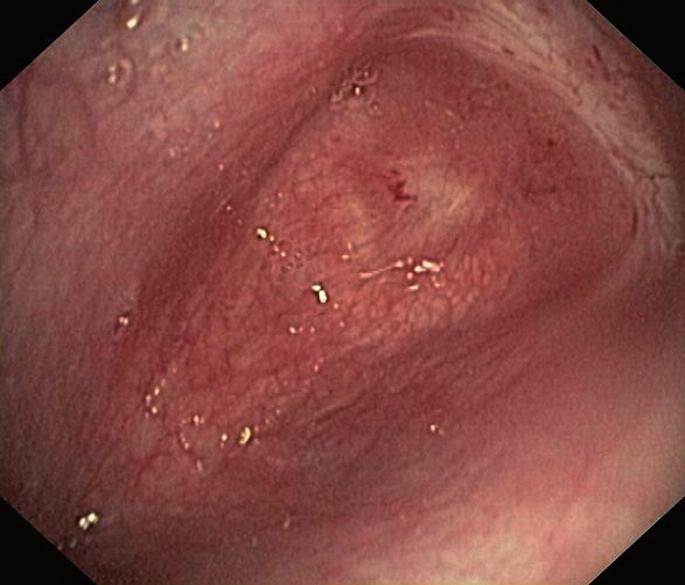 Endoskopický pohled na kompletní obturaci trachey
