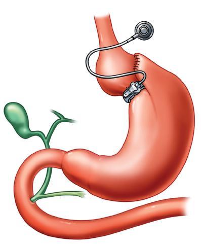 Bandáž žaludku
