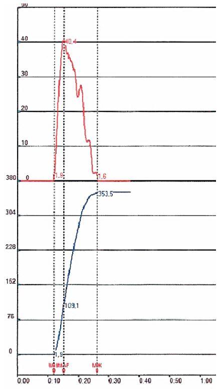Uroflowmetrická normální křivka