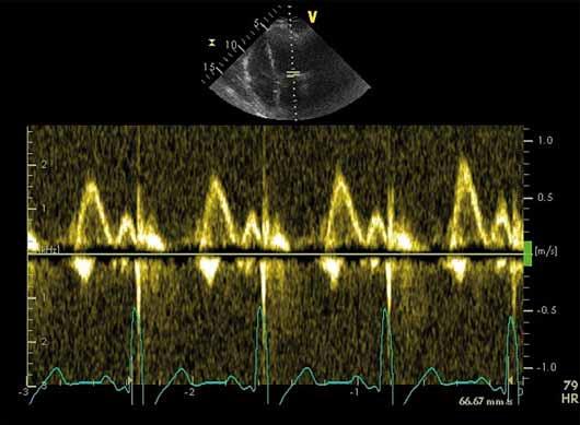 Pulzní dopplerovská analýza průtoku mitrální chlopní, fyziologický nález.