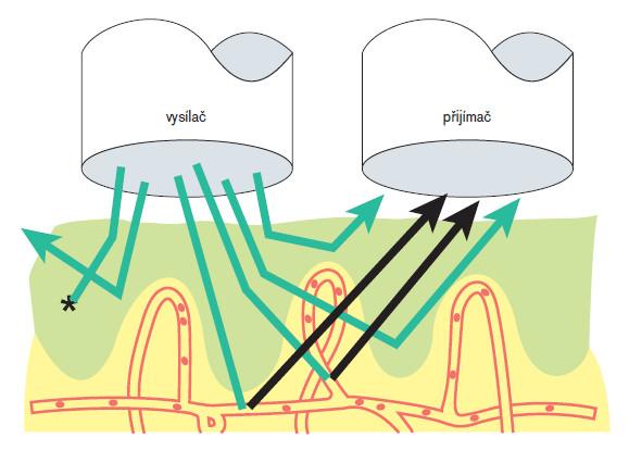 Průnik laserového paprsku tkání, odraz a analýza v zesilovači.