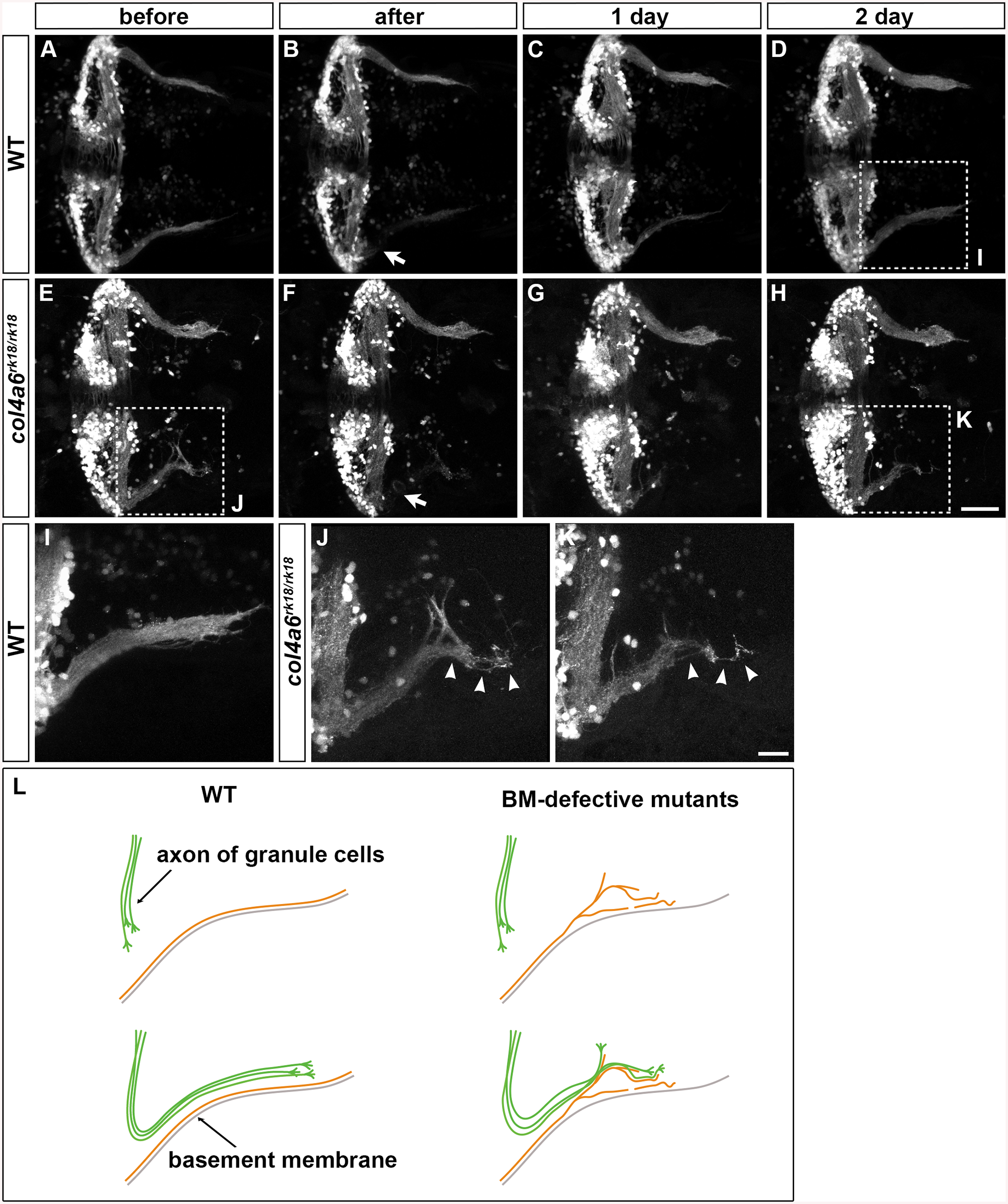 Abnormality in regenerating GC axons is linked to the abnormal BM structure in <i>col4a6</i> mutants.