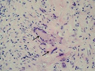 Histopatologický nález: šipky označují charakteristické obrovské mnohojaderné buňky infiltrující oblast tunica media stěny pravostranné větve temporální arterie. Barvení HE, 400krát.