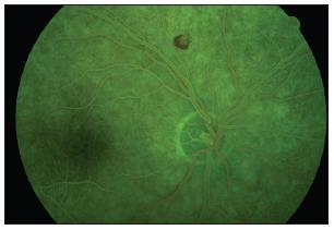 FAG obraz Rothovej škvrny pravého oka