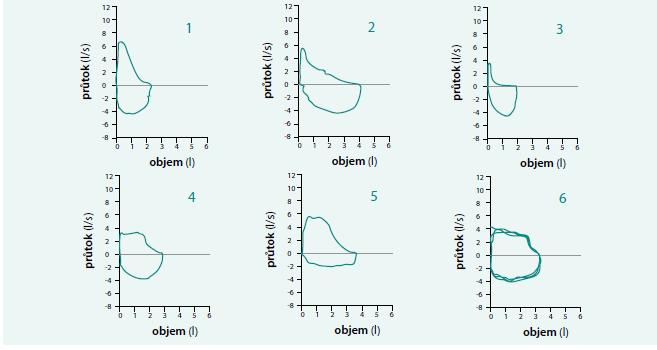 Příklady tvarů křivek průtok-objem.