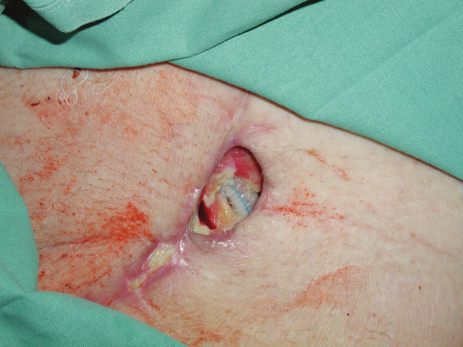Dehiscence rány v levém třísle s nekrózami a obnaženou PTFE protézou Fig. 1. A wound dehiscence in the left groin with necroses and an exposed PTFE prosthesis