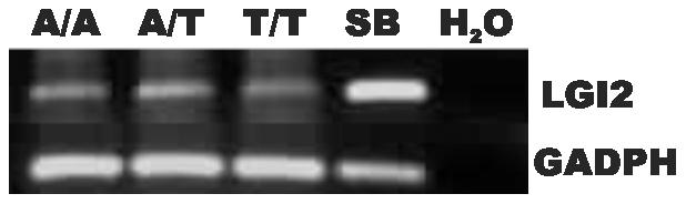Expression of the mutant <i>Lgi2</i> transcript is normal.