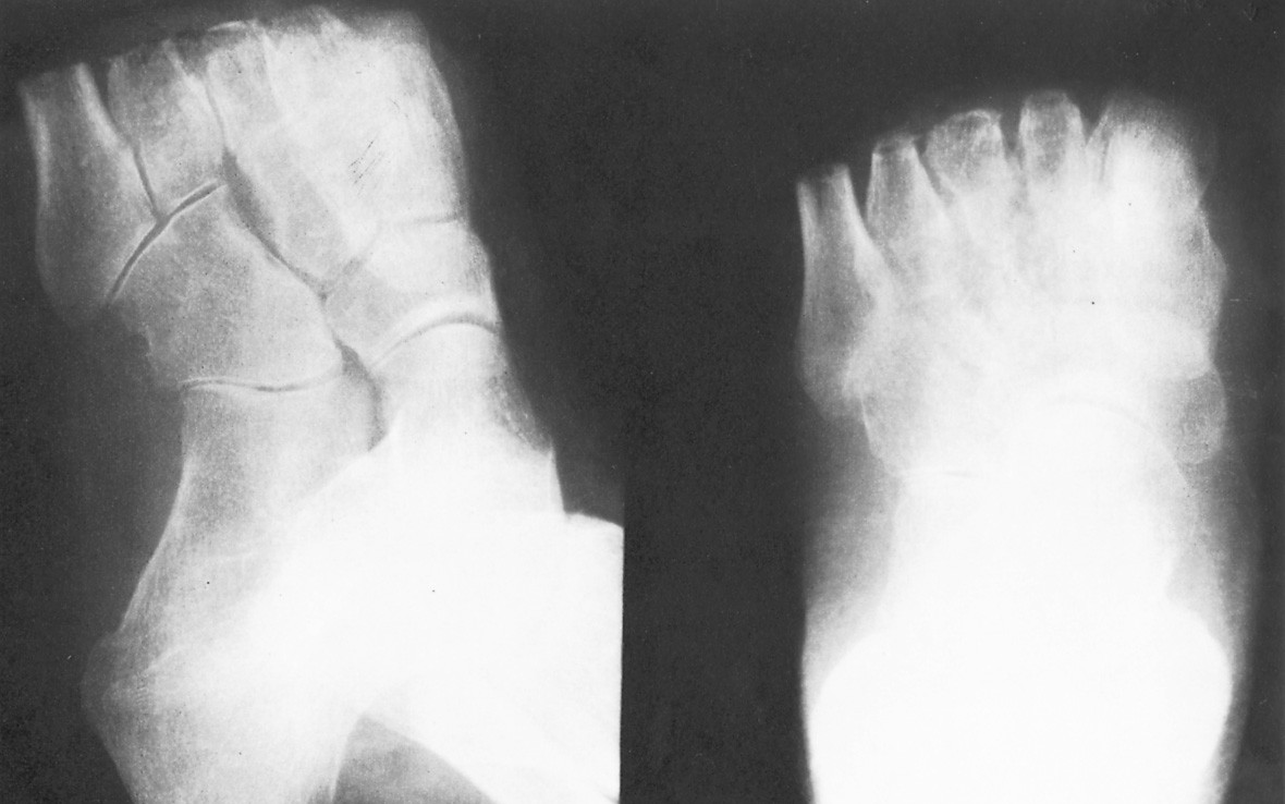 Obr. 2a, 2b. Stav po radikální nekrektomii – otevřené transmetatarzální amputaci u téže pacientky Fig. 2a, 2b. The condition following radical necrectomy – open transmetatarsal amputation in the same female patient