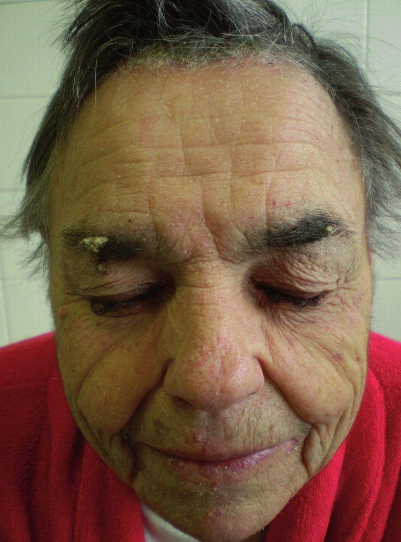 Trichomegália u pacientky pri liečbe cetuximabom pre metastatický kolorektálny karcinóm.