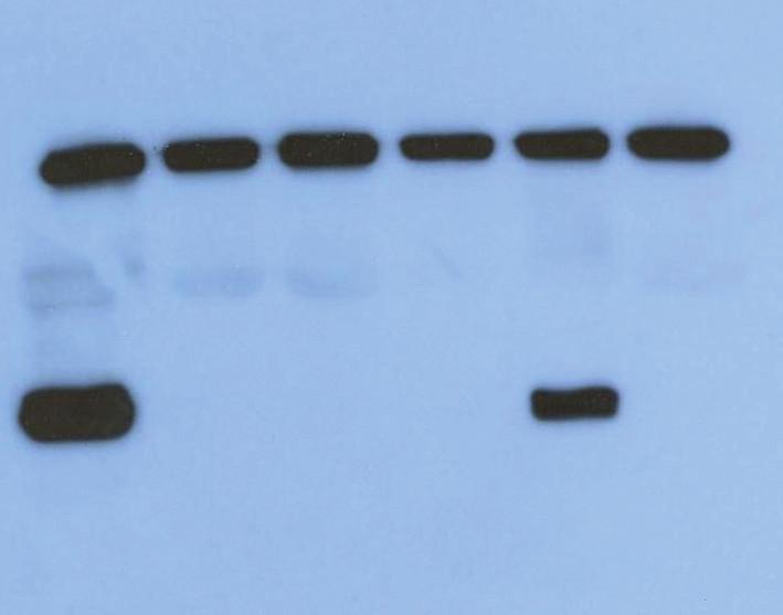 Výsledek vyšetření čtyř CSF na přítomnost ß- podjednotky proteinu 14- 3- 3. P: pozitivní kontrola, N: negativní kontrola; 1– 3: negativní vzorky, 4: pozitivní vzorek.