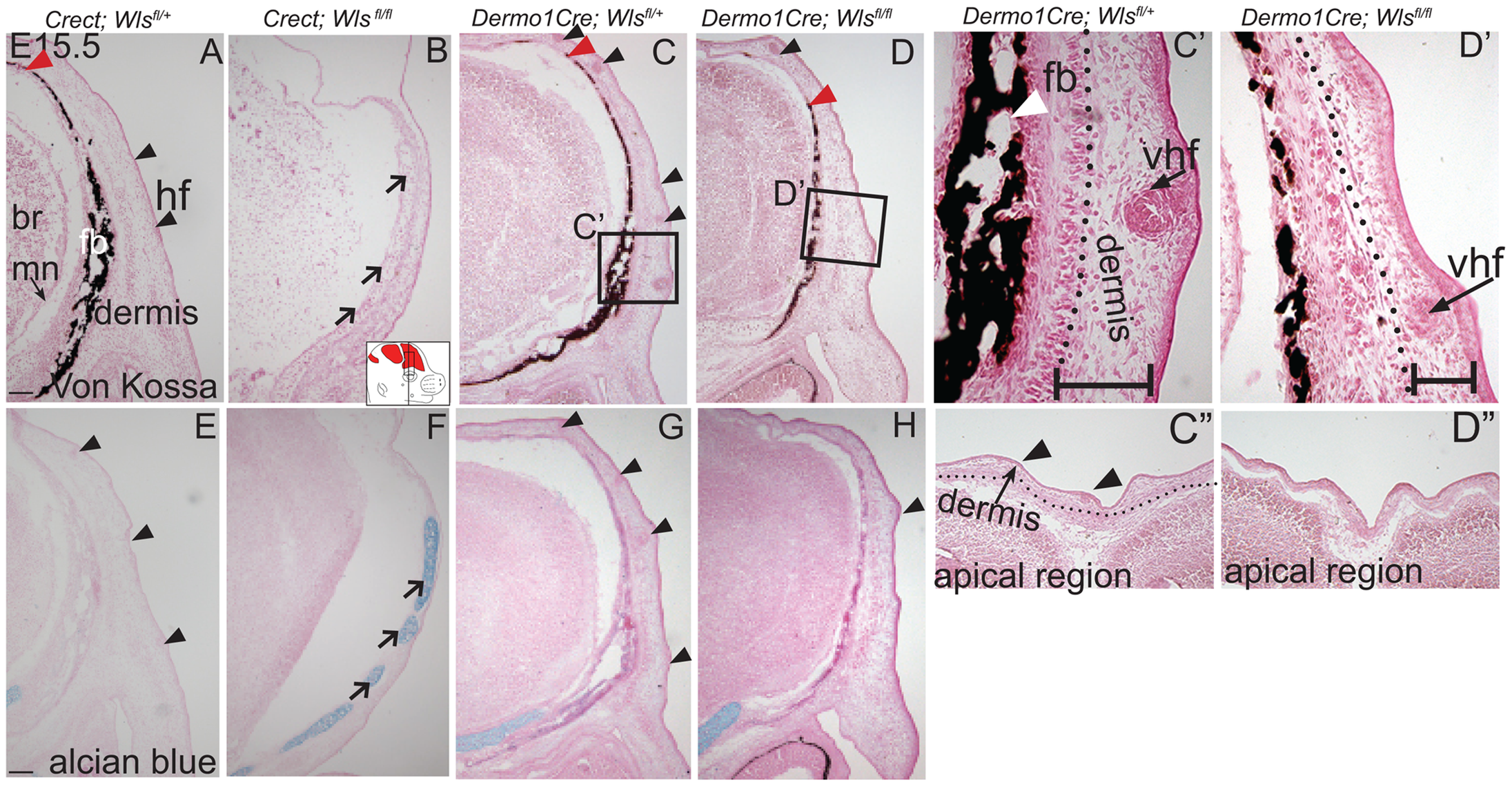 Distinct requirements for <i>Wntless</i> in the cranial ectoderm and mesenchyme.
