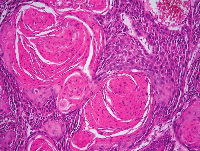 Obr. 3. Nenádorové, prekancerózní a nádorové léze vulvy sdružené v HPV negativní cestě karcinogeneze. A – LS (HE, 100x); B – LSC (HE, 40x); C – pfiechodová zóna mezi LSC a d-VIN (HE, 200x); D – d-VIN (HE, 40x); E – d-VIN (HE, 400x); F – SCC keratinizující (HE, 200x)
