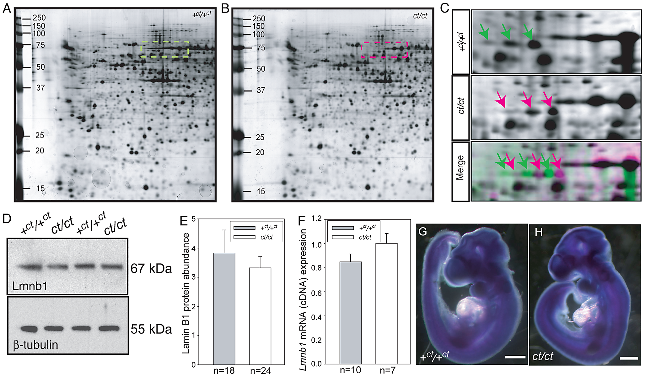 Lamin B1 shows differential protein migration by two-dimensional gel electrophoresis in <i>curly tail</i> and wild-type embryo samples.