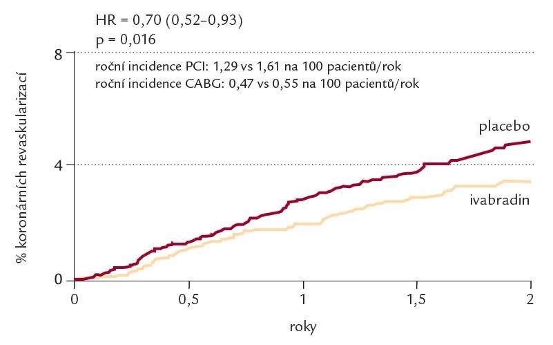 Vliv ivabradinu na nutnost koronární revaskularizace u nemocných s klidovou tepovou frekvencí ≥ 70 tepů/ min.