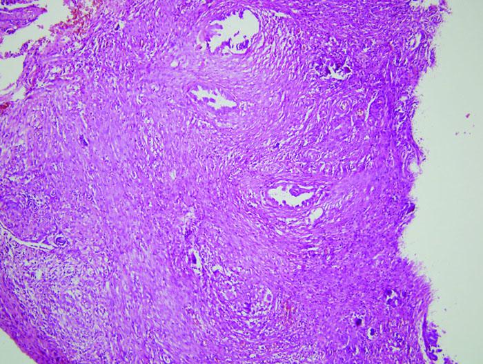 Histologický obraz mikroinvazivního serózního ovariálního borderline tumoru v 18. týdnu gravidity (HE, 4×).