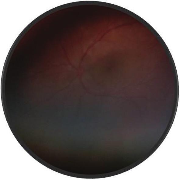 Fotografia fundu o. sin – multifokálna serózna amócia sietnice – uveitické štádium VKH syndrómu