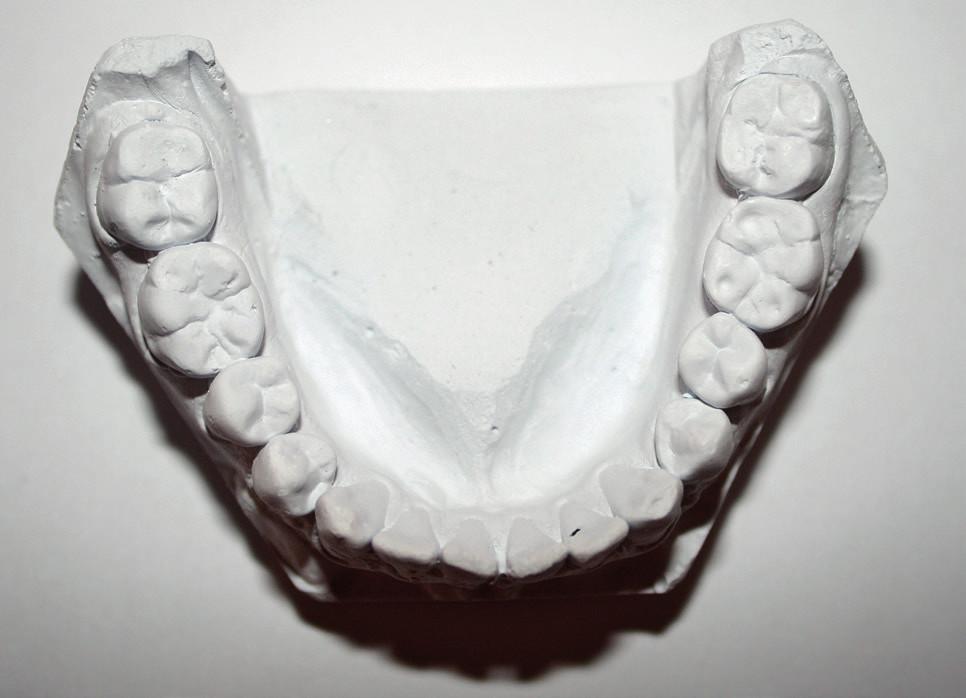 """Ztráta tvrdých zubních tkání na hrbolcích dolních molárů. Pravděpodobnou příčinou je kombinace faktorů – atrice v důsledku okluzních interferencí (klinickým vyšetřením byly zjištěny balanční a hyperbalanční kontakty na molárech) a koroze vzniklá konzumací kyselých jídel a nápojů (viz """"cupping"""" v oblasti hrbolků zubu 36) (pacient 25 let)"""
