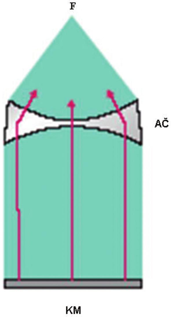 Elektromagnetický generátor. F–ohnisko rázových vln, AČ–akustický systém čoček, KM–kovová membrána.