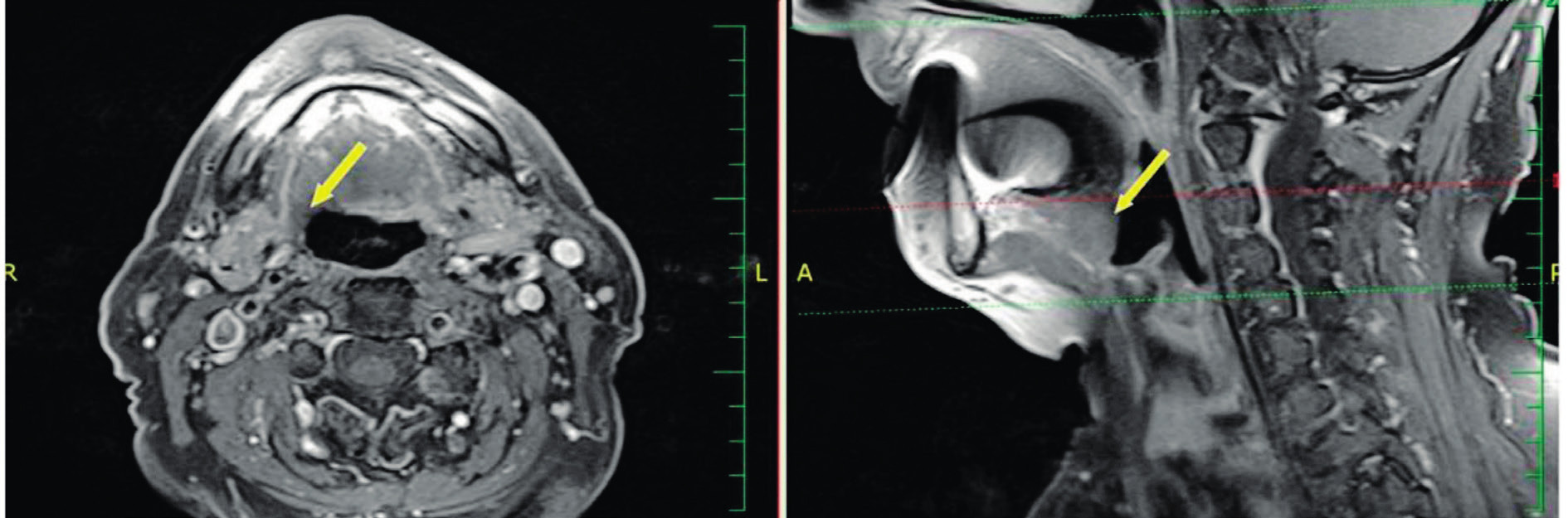 Oba snímky MR T1 s potlačením signálu tuku postkontrastně - šipka ukazuje na oblast kořene jazyka 1 rok po TORS.