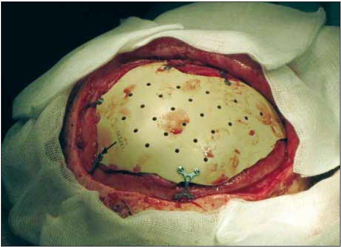 Usazení implantátu – biokompatibilní implantát přesně vyplňuje kostní defekt, a obnovuje tak anatomické kontury. Je pevně přichycen titanovými dlažkami a šrouby.