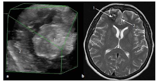 Sonografický 3D obraz kavernomu čelního laloku vpravo. Fig. 5. The ultrasound 3D image of right frontal lobe cavernoma.