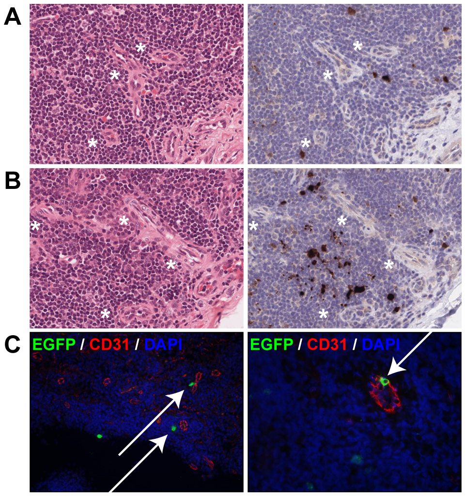 Dissemination of MV into the lymphoid organs via blood vessels.