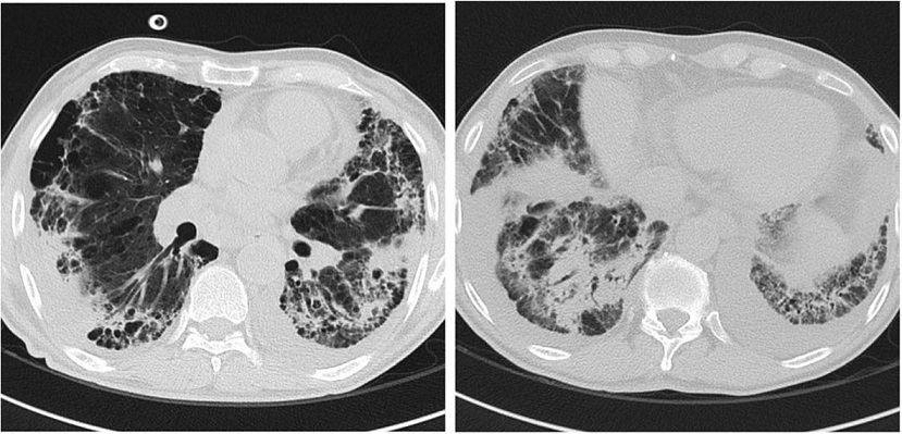 Chest CT scan image after 14 days of broad-spectrum therapy with deteriorating respiratory condition: increase in size and number of the parenchymal consolidation and ground-glass areas, consistent with ongoing pneumonia
