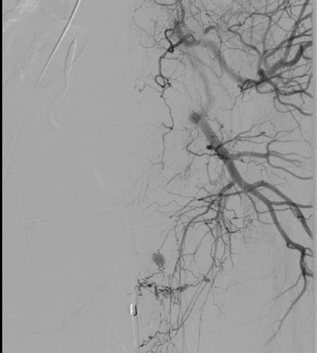 <i>Angiografie – leak z a. iliaca interna l. sin</i> Fig. 4. <i>Angiography – leak from left internal iliac artery</i>