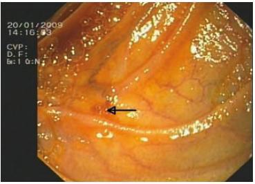 Endoskopický pohled na nenápadné vyústění stenotizované HJA v přívodné kličce cca 5 cm pod jejím zaslepeným koncem. Označeno šipkou. Fig. 3. Endoscopic view of an unobtrusive opening of stenotic HJA in the inlet loop about 5 centimeters below its blinded end. This is designated by an arrow.
