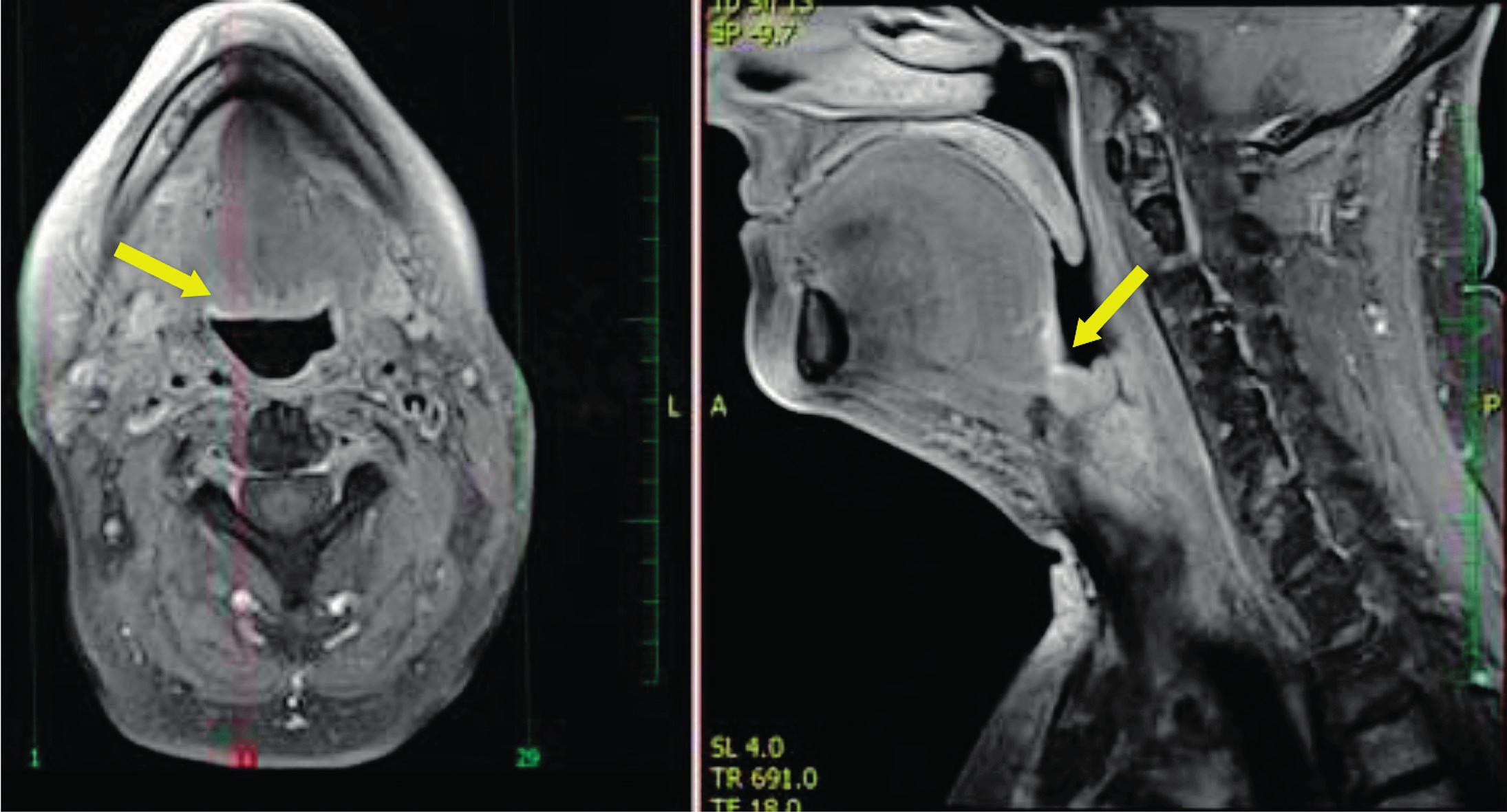 Oba snímky MR T1 s potlačením signálu tuku postkontrastně - šipka ukazuje na oblast lůžka po rozšířené tonzilektomii 1 rok po zákroku TORS.
