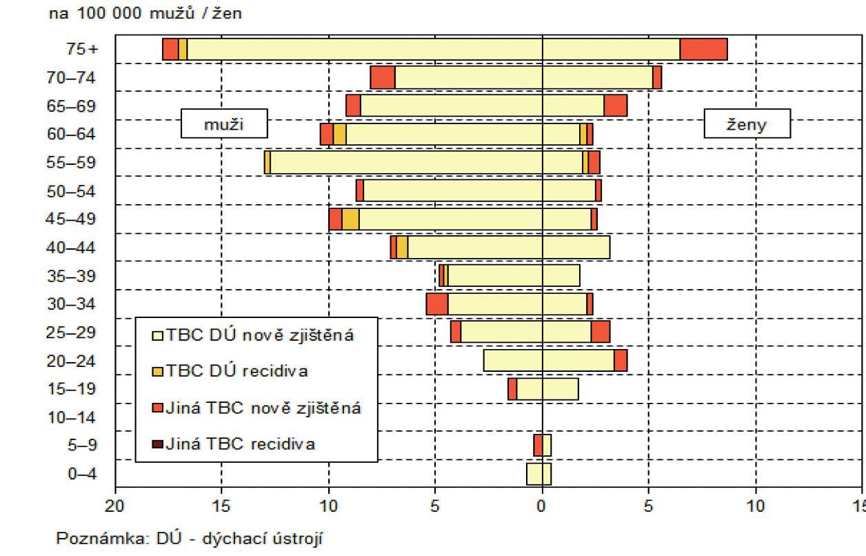 Struktura TBC podle věku a pohlaví, 2013