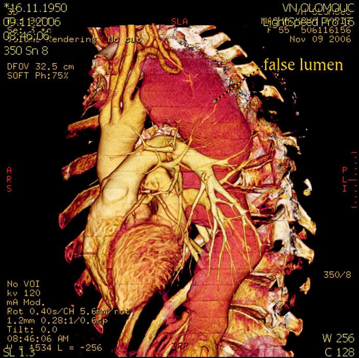 CT rekonstukce stavu před operací – rozsáhlé aneuryzma a disekce celého úseku hrudní a břišní aorty Fig. 2. A CT reconstruction of the preoperative condition – extensive aneurysm and dissection of the whole thoracic and abdominal aortic region
